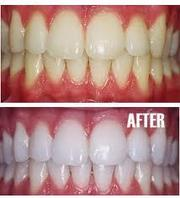 Laser Teeth Whitening service
